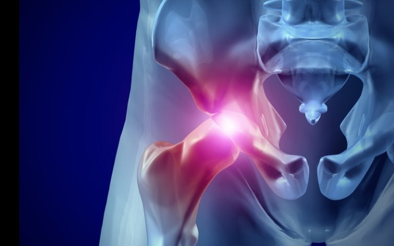 hip osteoarthritis and replacement