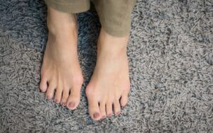 Woman with bunions on her feet